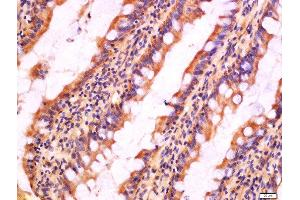 Image no. 9 for anti-NLR Family, Pyrin Domain Containing 3 (NLRP3) (AA 15-120) antibody (ABIN1386361)