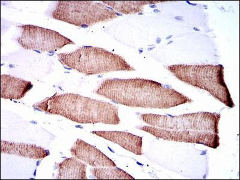 Immunohistochemistry (IHC) image for anti-MAP2K7 antibody (Mitogen-Activated Protein Kinase Kinase 7) (ABIN969271)