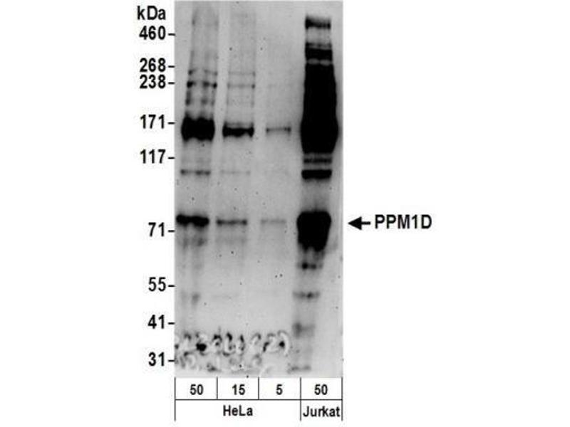 Western Blotting (WB) image for anti-Protein Phosphatase, Mg2+/Mn2+ Dependent, 1D (PPM1D) (AA 500-550) antibody (ABIN151547)
