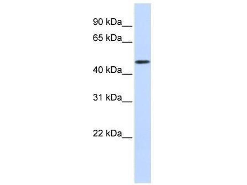 Western Blotting (WB) image for anti-DDB1 and CUL4 Associated Factor 4 (DCAF4) antibody (ABIN4890010)