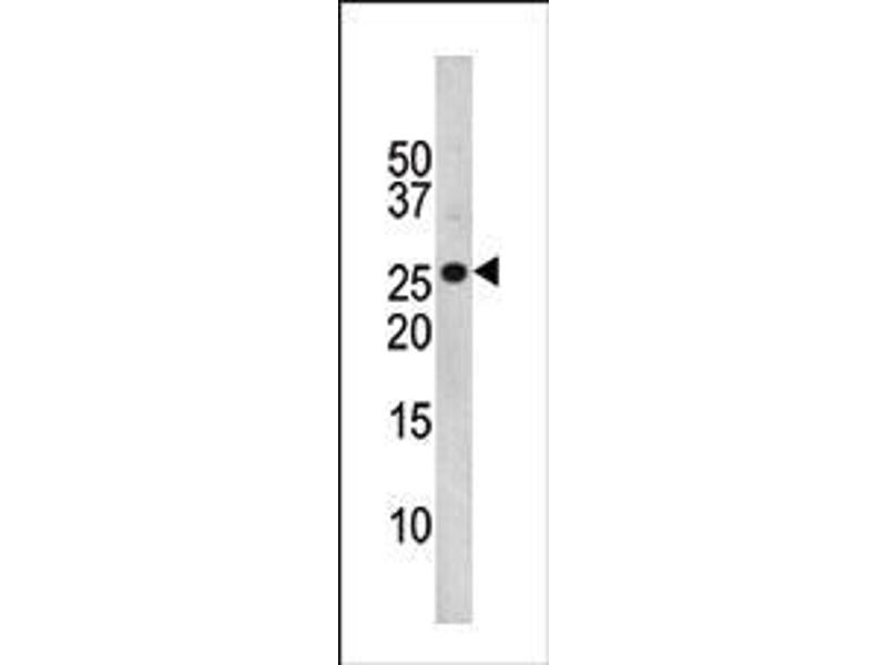 Western Blotting (WB) image for anti-Cyclin-Dependent Kinase Inhibitor 1B (p27, Kip1) (CDKN1B) (pThr157) antibody (ABIN389616)