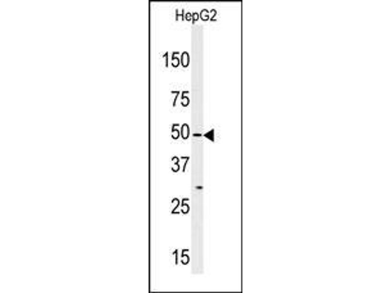 Western Blotting (WB) image for anti-ZAK antibody (Mitogen-Activated Protein Kinase Kinase Kinase MLT) (AA 271-300) (ABIN392643)