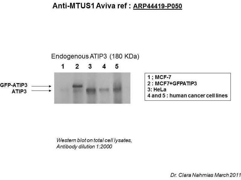 Image no. 2 for anti-Microtubule Associated Tumor Suppressor 1 (MTUS1) (Middle Region) antibody (ABIN502510)