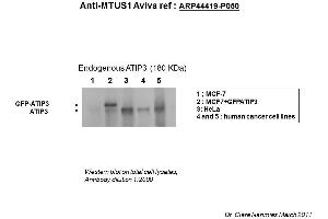 Image no. 2 for anti-Microtubule Associated Tumor Suppressor 1 (MTUS1) (Middle Region) antibody (ABIN502510)