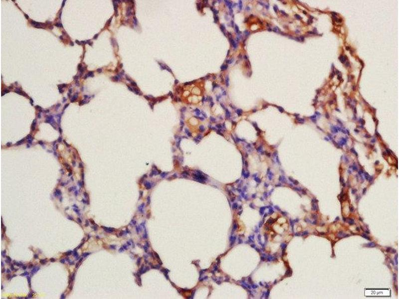 Immunohistochemistry (Paraffin-embedded Sections) (IHC (p)) image for anti-FLT3 antibody (Fms-Related tyrosine Kinase 3) (pTyr842) (ABIN684868)