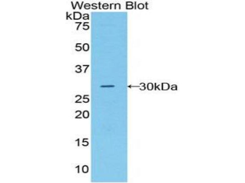 Western Blotting (WB) image for anti-Macrophage Stimulating 1 Receptor (C-Met-Related tyrosine Kinase) (MST1R) (AA 1092-1316) antibody (ABIN1859891)