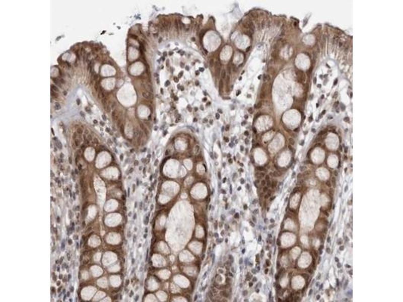 Immunohistochemistry (Paraffin-embedded Sections) (IHC (p)) image for anti-RasGEF Domain Family, Member 1C (RASGEF1C) antibody (ABIN4349415)