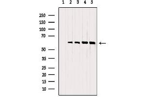 Image no. 6 for anti-Proto-oncogene tyrosine-protein kinase Src (Src) antibody (ABIN6265276)