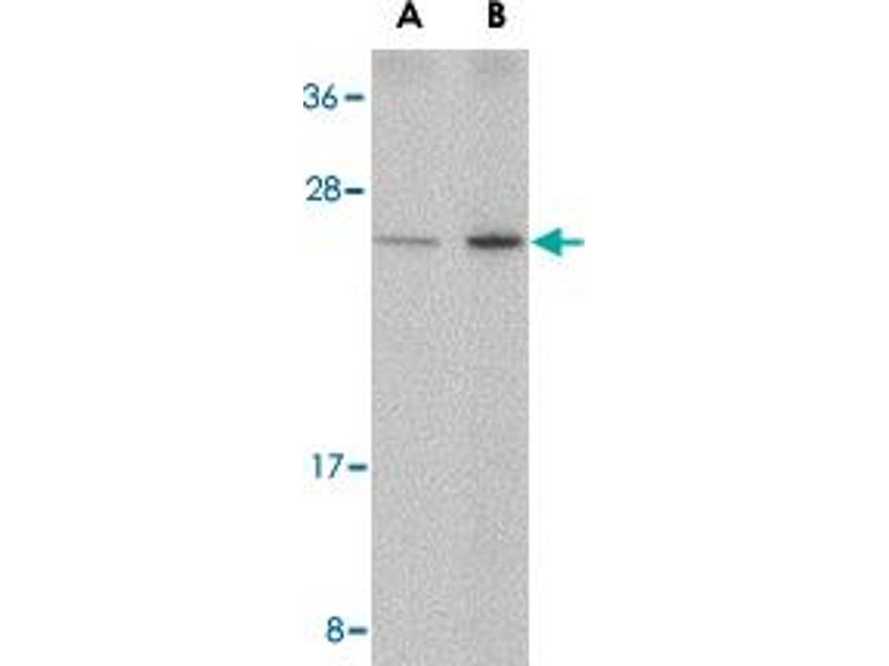 Western Blotting (WB) image for anti-DNA-Damage-Inducible Transcript 4 (DDIT4) antibody (ABIN541689)