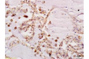 Immunohistochemistry (IHC) image for anti-Frizzled Family Receptor 7 (FZD7) (AA 550-574) antibody (ABIN710051)