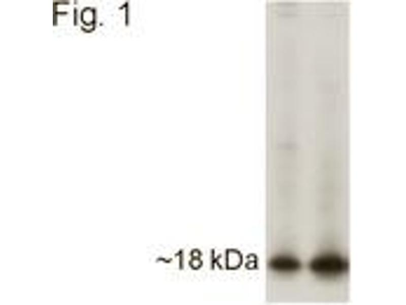Western Blotting (WB) image for anti-APH1A antibody (Anterior Pharynx Defective 1 Homolog A (C. Elegans)) (C-Term) (ABIN123019)