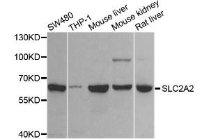 Image no. 1 for anti-Solute Carrier Family 2 (Facilitated Glucose Transporter), Member 2 (SLC2A2) antibody (ABIN6572043)