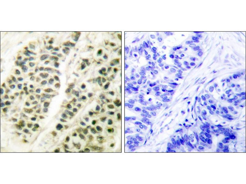 Image no. 1 for anti-Polymerase (DNA Directed), beta (POLB) antibody (ABIN1576094)