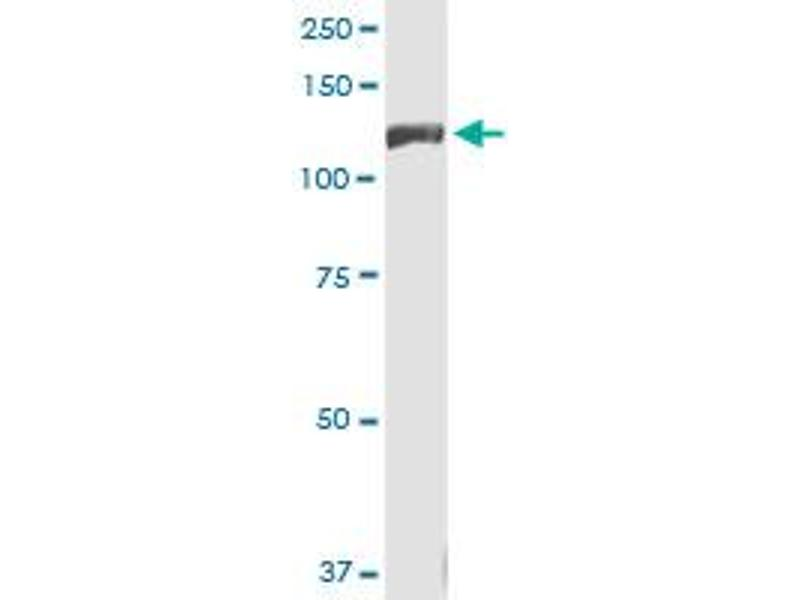 Western Blotting (WB) image for anti-INSRR antibody (Insulin Receptor-Related Receptor) (AA 651-760) (ABIN561506)