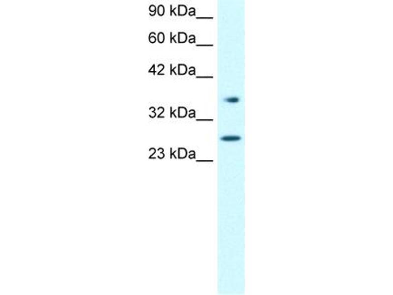 Western Blotting (WB) image for anti-Forkhead Box A3 (FOXA3) (Middle Region) antibody (ABIN2777513)