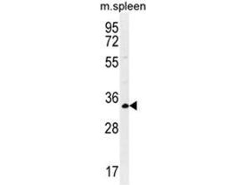 Western Blotting (WB) image for anti-Aldolase C, Fructose-Bisphosphate (ALDOC) (AA 79-108), (N-Term) antibody (ABIN950346)