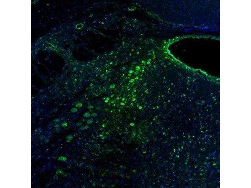 Immunofluorescence (IF) image for anti-Reticulocalbin 2, EF-Hand Calcium Binding Domain (RCN2) antibody (ABIN4349749)