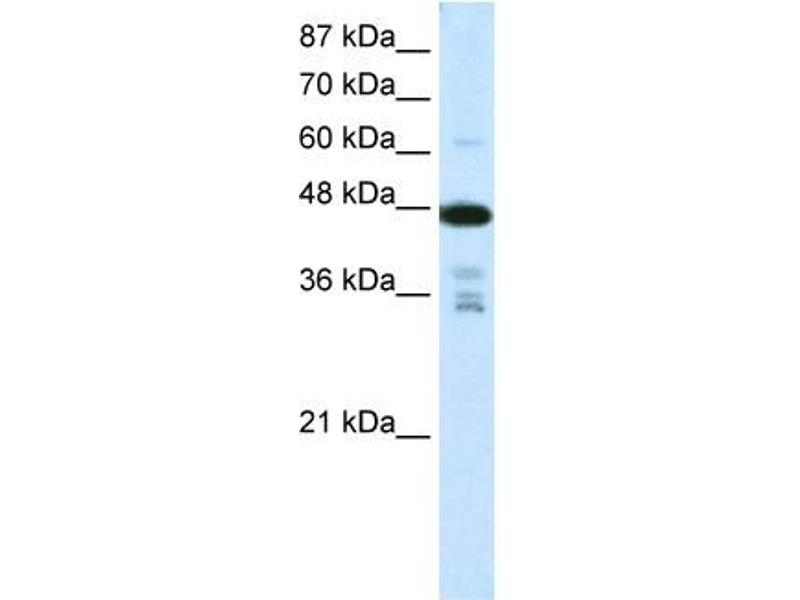 Western Blotting (WB) image for anti-PRMT2 antibody (Protein Arginine Methyltransferase 2) (N-Term) (ABIN183891)