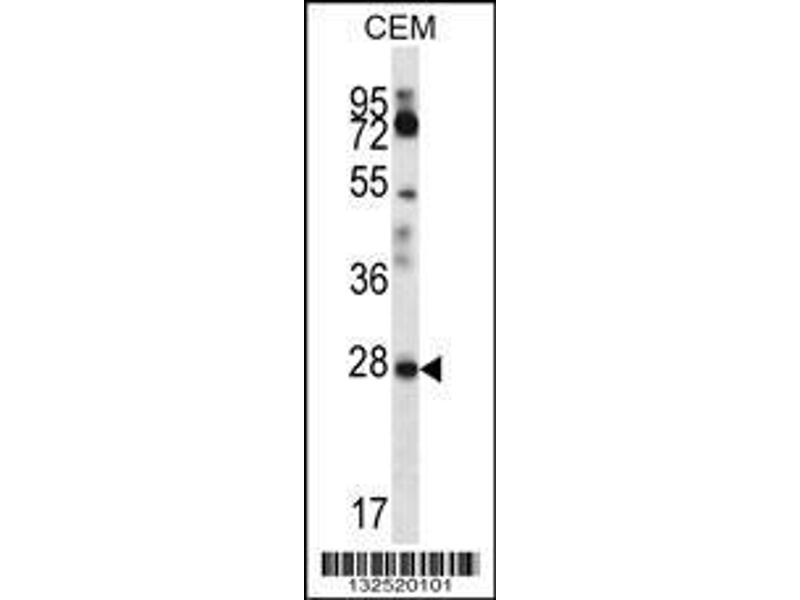 Western Blotting (WB) image for anti-Retinoic Acid Receptor Responder (Tazarotene Induced) 1 (RARRES1) (AA 134-163), (C-Term) antibody (ABIN657062)