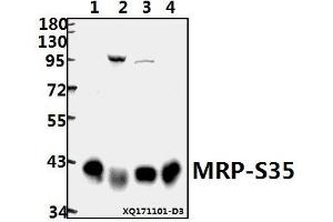 Image no. 1 for anti-Mitochondrial Ribosomal Protein S35 (MRPS35) (AA 220-270) antibody (ABIN6713467)