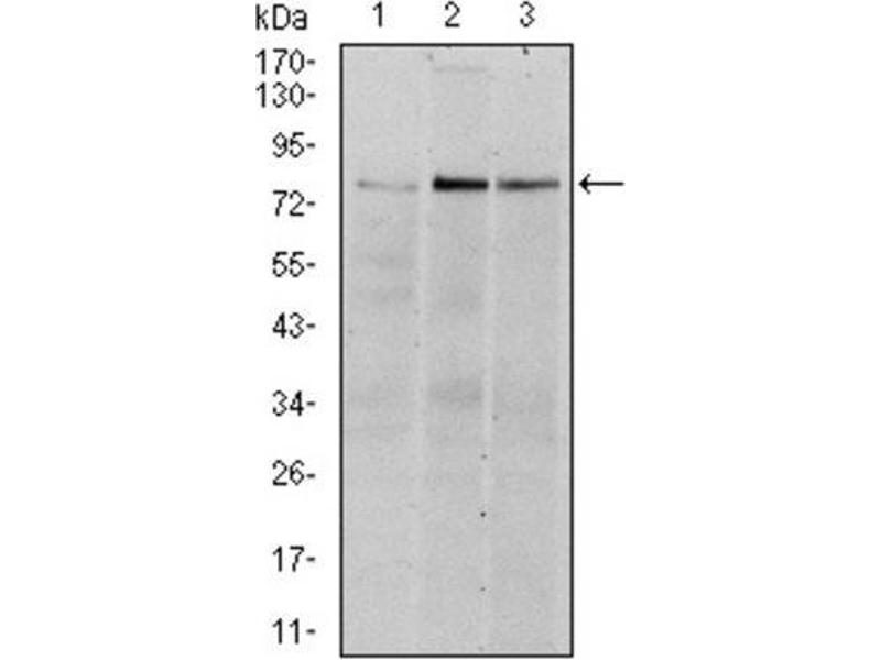 Western Blotting (WB) image for anti-Ribosomal Protein S6 Kinase, 90kDa, Polypeptide 3 (RPS6KA3) antibody (ABIN1846061)