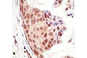 Image no. 4 for anti-SMT3 Suppressor of Mif Two 3 Homolog 1 (S. Cerevisiae) (SUMO1) (AA 55-86) antibody (ABIN3032769)