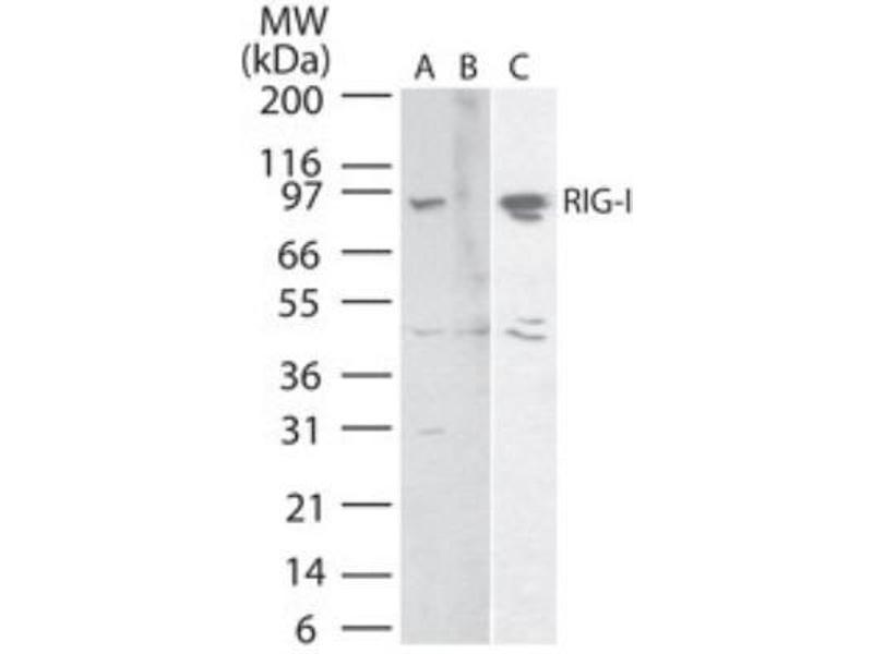 Western Blotting (WB) image for anti-DEAD (Asp-Glu-Ala-Asp) Box Polypeptide 58 (DDX58) antibody (ABIN4350538)