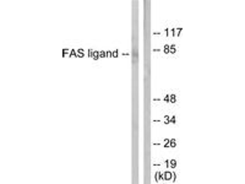 Western Blotting (WB) image for anti-FASL antibody (Fas Ligand (TNF Superfamily, Member 6)) (ABIN1533270)