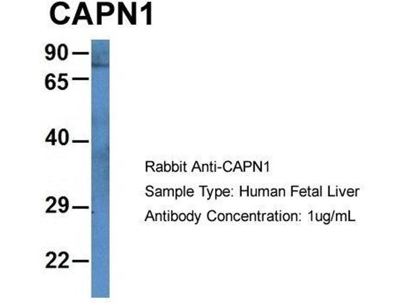 Western Blotting (WB) image for anti-Calpain 1, Large Subunit (CAPNL1) (N-Term) antibody (ABIN2788626)