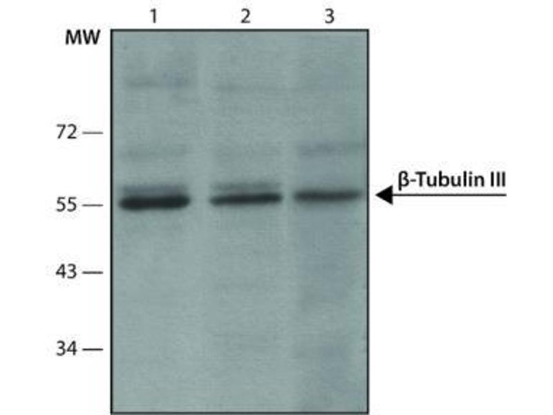 Western Blotting (WB) image for anti-Tubulin, Beta, 3 (TUBB3) (C-Term) antibody (ABIN265869)