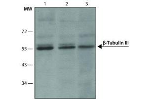 Western Blotting (WB) image for anti-TUBB3 antibody (Tubulin, Beta, 3) (C-Term) (ABIN265869)
