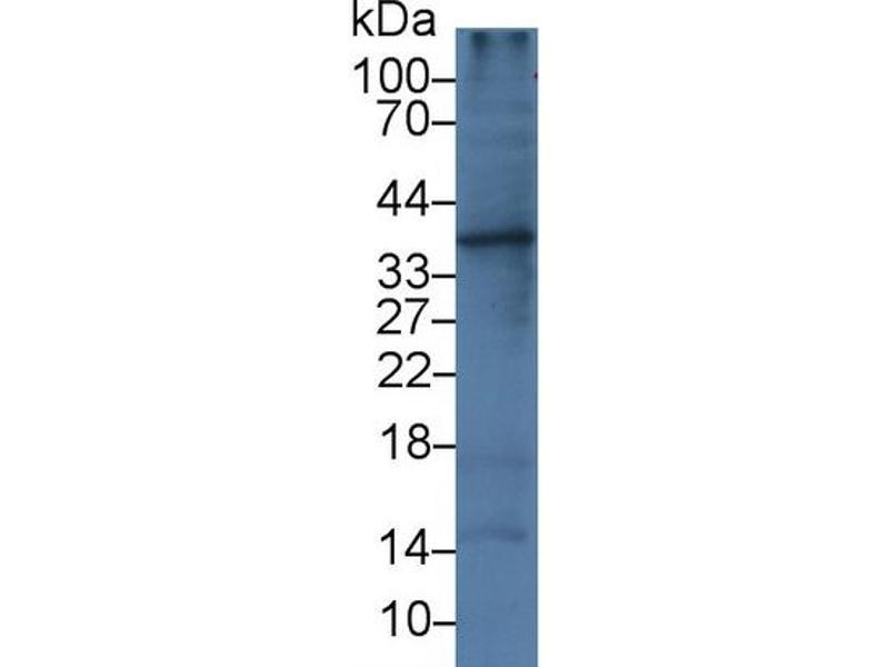 Western Blotting (WB) image for anti-Interleukin 1 alpha (IL1A) antibody (ABIN3201254)