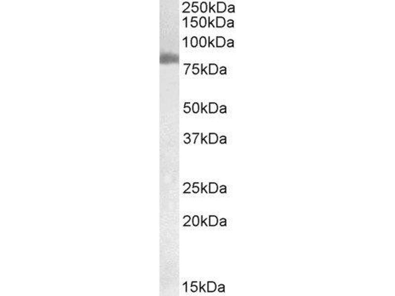 Western Blotting (WB) image for Transglutaminase 2 (C Polypeptide, Protein-Glutamine-gamma-Glutamyltransferase) (TGM2) peptide (ABIN369455)