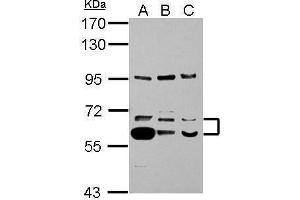Western Blotting (WB) image for anti-Thioredoxin Reductase 1 (TXNRD1) (Center) antibody (ABIN2855579)