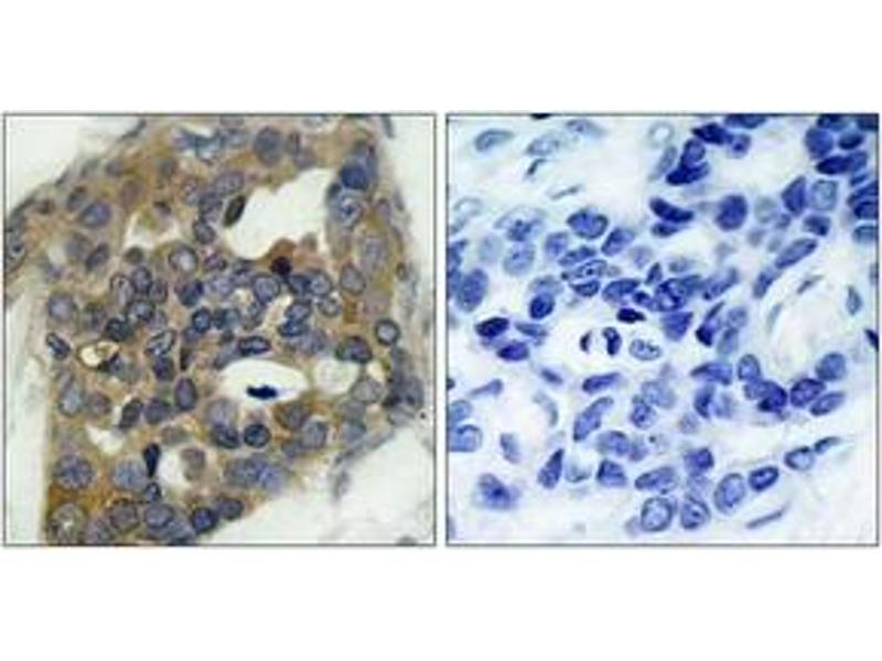 Immunohistochemistry (IHC) image for anti-Mitogen-Activated Protein Kinase Kinase Kinase 5 (MAP3K5) (pSer966) antibody (ABIN1531773)