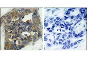 Immunohistochemistry (IHC) image for anti-MAP3K5 antibody (Mitogen-Activated Protein Kinase Kinase Kinase 5) (pSer966) (ABIN1531773)