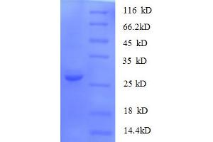 Image no. 1 for S100 Calcium Binding Protein A11 (S100A11) (AA 2-105) protein (His-SUMO Tag) (ABIN5710294)