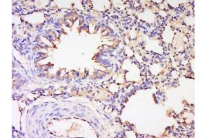 Image no. 4 for anti-Nitric Oxide Synthase 2, Inducible (NOS2) (AA 1-50) antibody (ABIN677228)