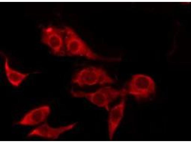 Immunofluorescence (fixed cells) (IF/ICC) image for anti-Colony Stimulating Factor 2 Receptor, Beta, Low-Affinity (Granulocyte-Macrophage) (CSF2RB) antibody (ABIN6261056)