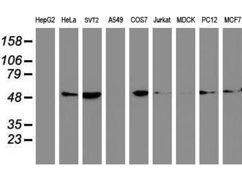 image for anti-Tubulin, Beta, 5 (TUBB5) antibody (ABIN1501579)