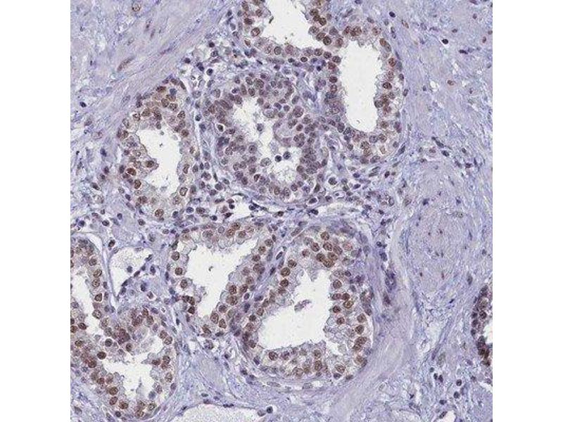 Immunohistochemistry (Paraffin-embedded Sections) (IHC (p)) image for anti-RNA Binding Motif Protein 12 (RBM12) 抗体 (ABIN4349578)
