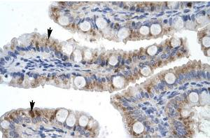 Image no. 1 for anti-Zinc Finger Protein 341 (ZNF341) (Middle Region) antibody (ABIN2779238)