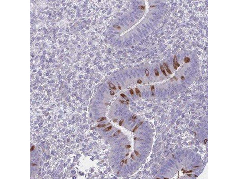 Immunohistochemistry (IHC) image for anti-Phosphatidylinositol Transfer Protein, Membrane-Associated 1 (PITPNM1) antibody (ABIN4339781)