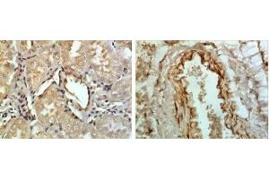 Immunohistochemistry (Paraffin-embedded Sections) (IHC (p)) image for anti-Tumor Necrosis Factor Receptor Superfamily, Member 13C (TNFRSF13C) antibody (ABIN4282888)