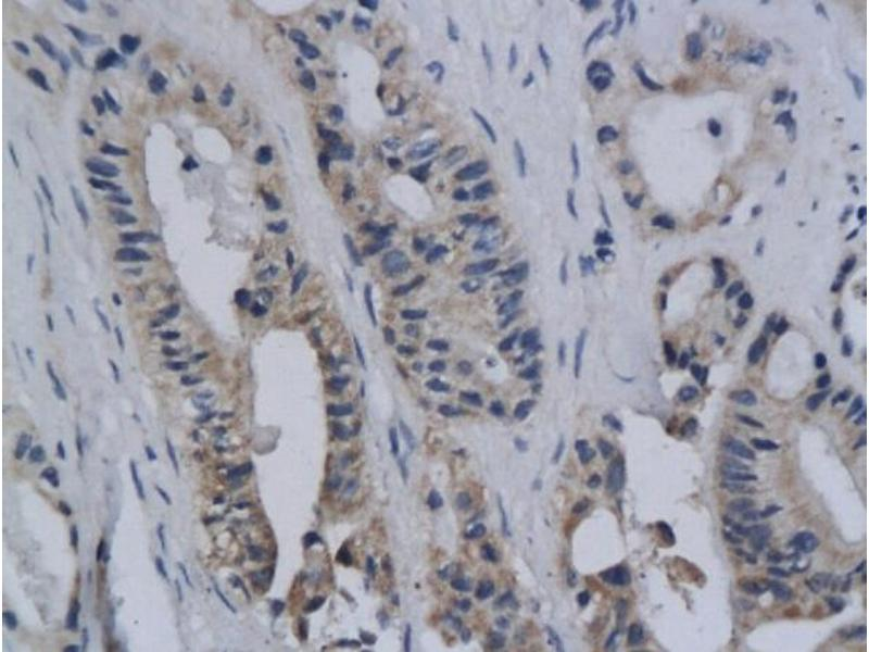 Immunohistochemistry (IHC) image for anti-C-Ros Oncogene 1 , Receptor tyrosine Kinase (ROS1) (AA 2300-2345) antibody (ABIN741225)