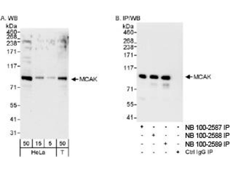 Western Blotting (WB) image for anti-Kinesin Family Member 2C (KIF2C) (AA 550-600) antibody (ABIN251028)