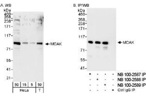 Western Blotting (WB) image for anti-KIF2C antibody (Kinesin Family Member 2C) (AA 550-600) (ABIN251028)
