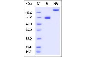 Image no. 3 for CD274 Molecule (CD274) (AA 19-238) (Active) protein (Fc Tag) (ABIN2870683)