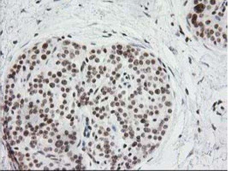 Immunohistochemistry (Paraffin-embedded Sections) (IHC (p)) image for anti-Cryptochrome 2 (Photolyase-Like) (CRY2) antibody (ABIN4300636)
