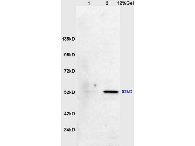 SDS-PAGE (SDS) image for anti-MAPKAP Kinase 5 antibody (Mitogen-Activated Protein Kinase-Activated Protein Kinase 5) (AA 160-210) (ABIN710546)